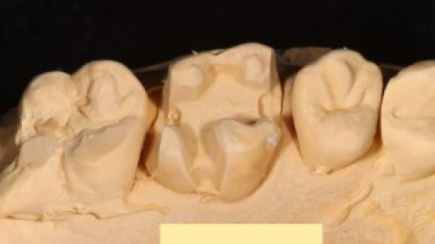 【石膏模型からどの印象方法か分かりますか?】らぼらぼ通信 Vol.68